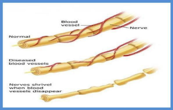 Healthy nerves vs. pinched nerves in need of peripheral neuropathy treatment, one of our services at Ballerini Chiropractic.